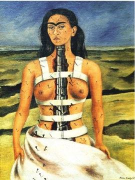 Den sydamerikanska konstnären Frida Kahlo hade kroniska smärtor efter olyckor och operationer.